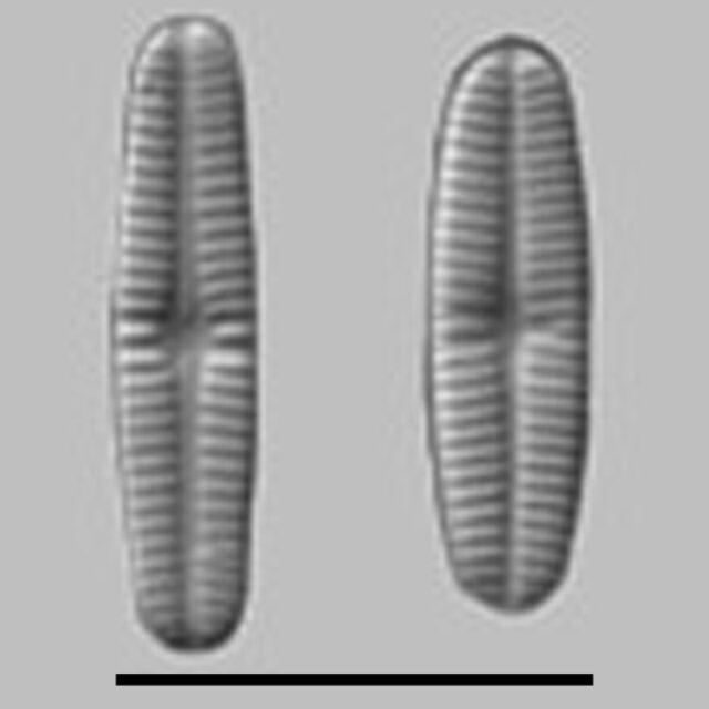 Rossithidium Pusillum Aac