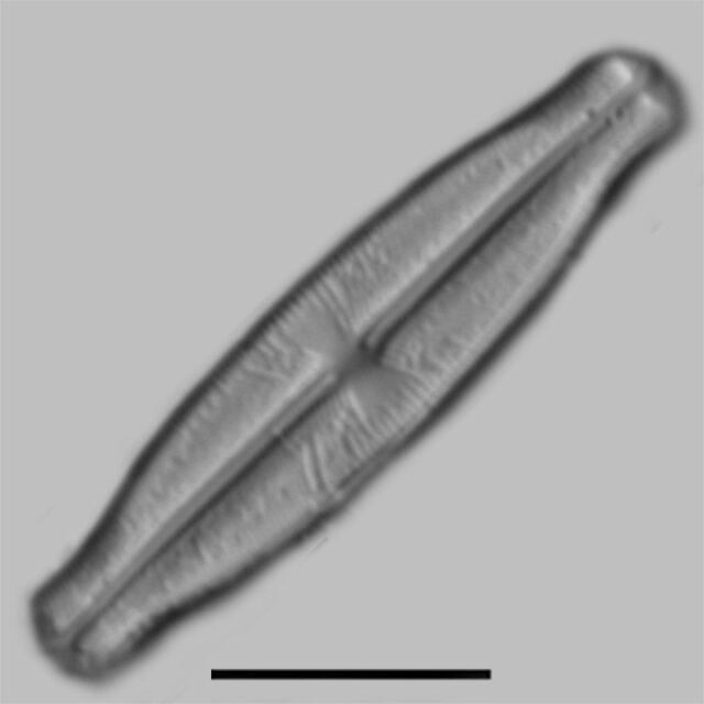 Sellaphora Stauroneioides Iconic