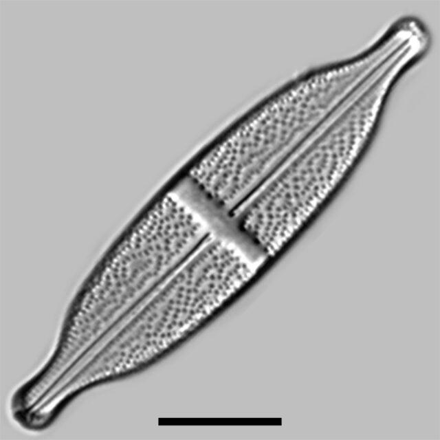 Stauroneis Lauenburgiana Iconic