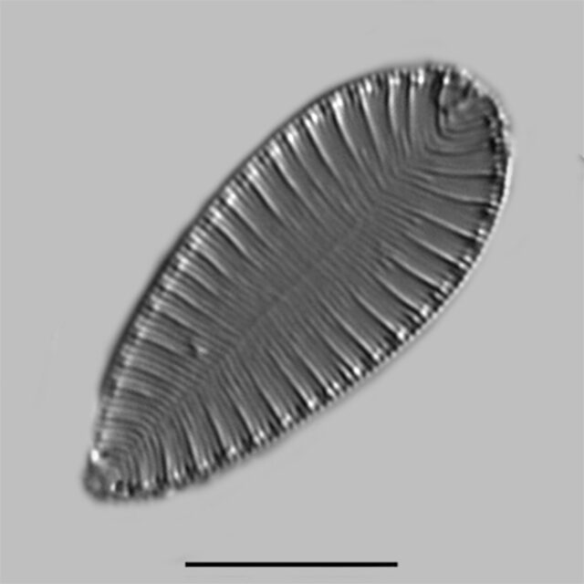 Surirella lacrimula iconic