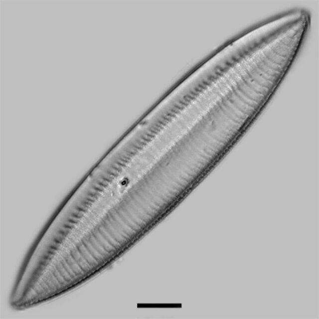 Tryblionella Gracilis Iconic