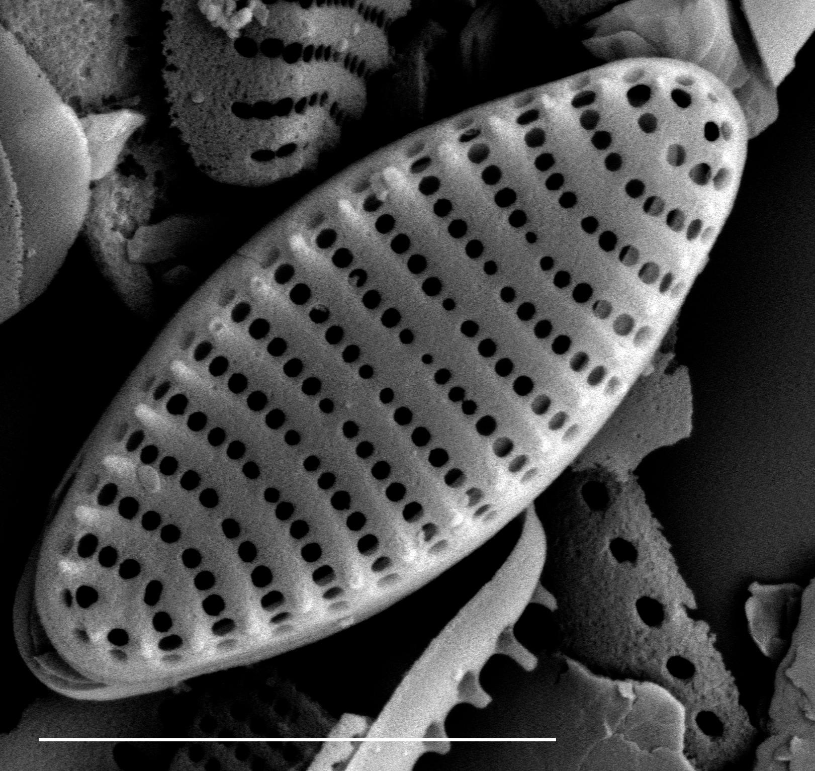 Stauroforma exiguiformis SEM1
