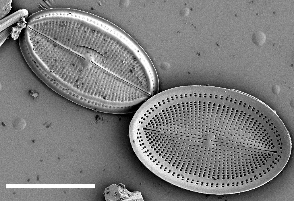 Cocconeis Placentula  Sem1