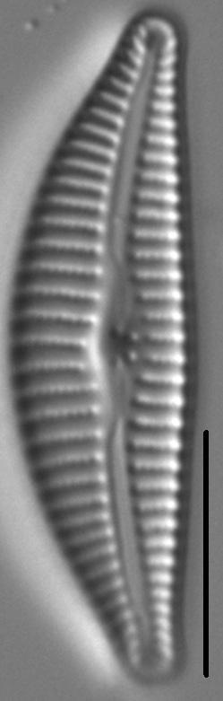 Cymbella Affiniformis8
