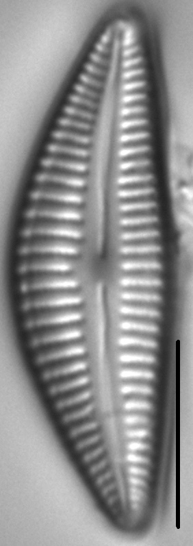 Cymbella Stigmaphora8