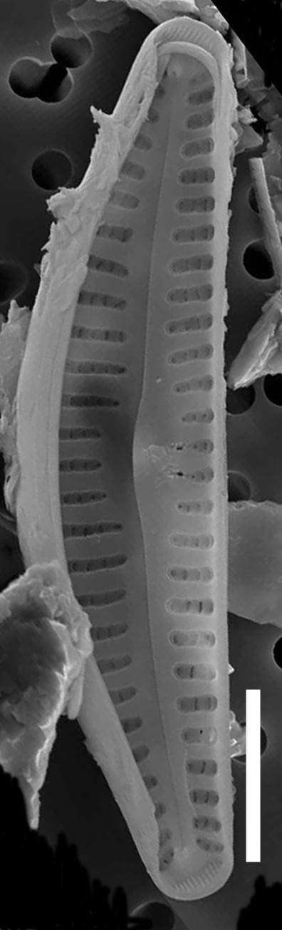 Cymbellacosleyi  Sem Internal Scale5Mu