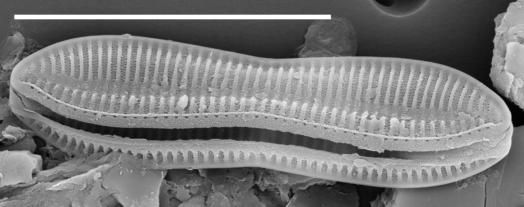 Tryblionella Apiculata 15631  Sem 100