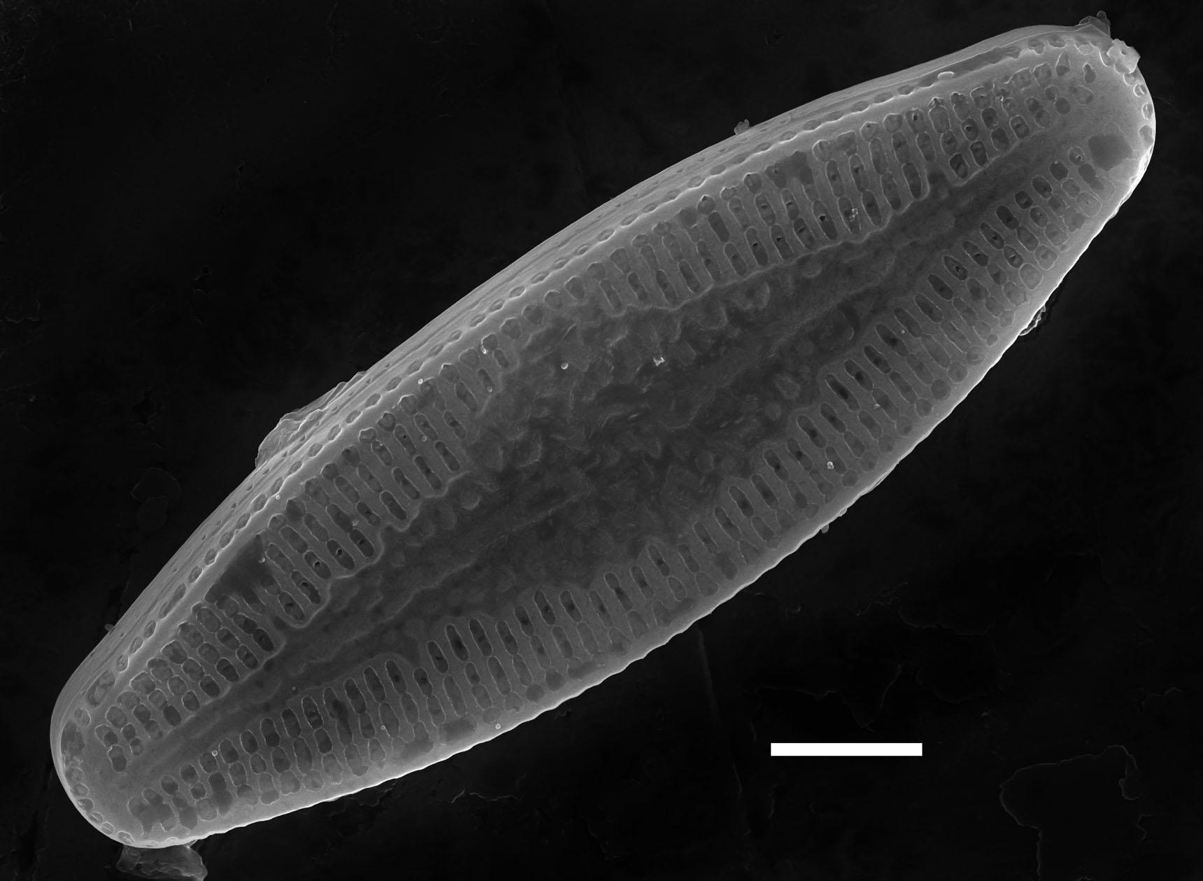 Nupela poconoensis SEM2