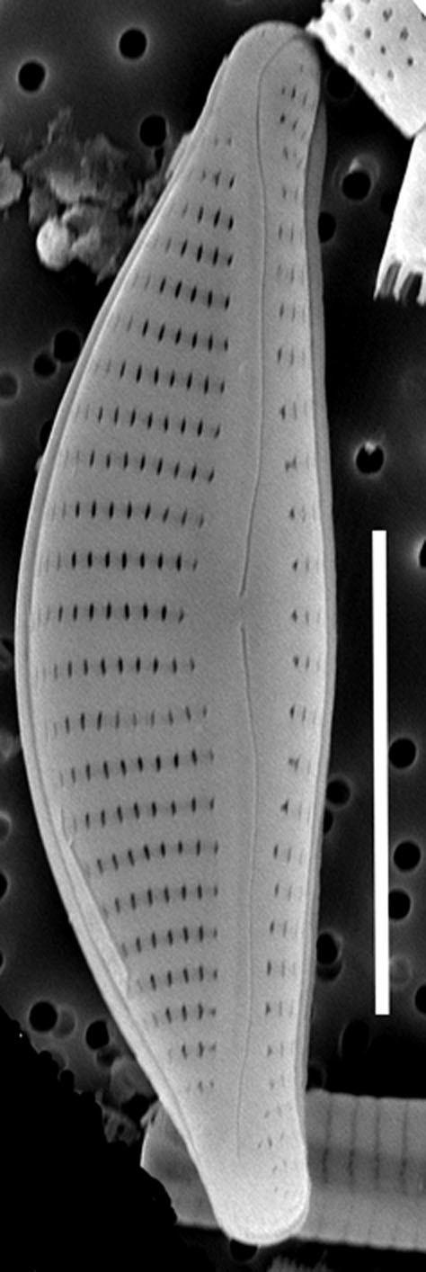 Encyonema Obscurum 504301 Sem Wholevalve External