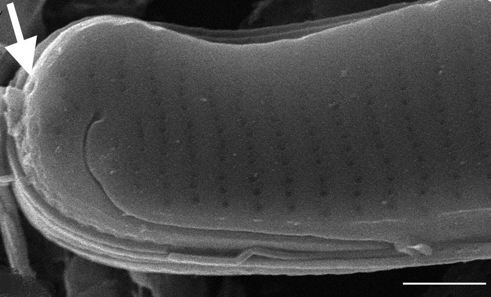 Eunotia nymanniana SEM1