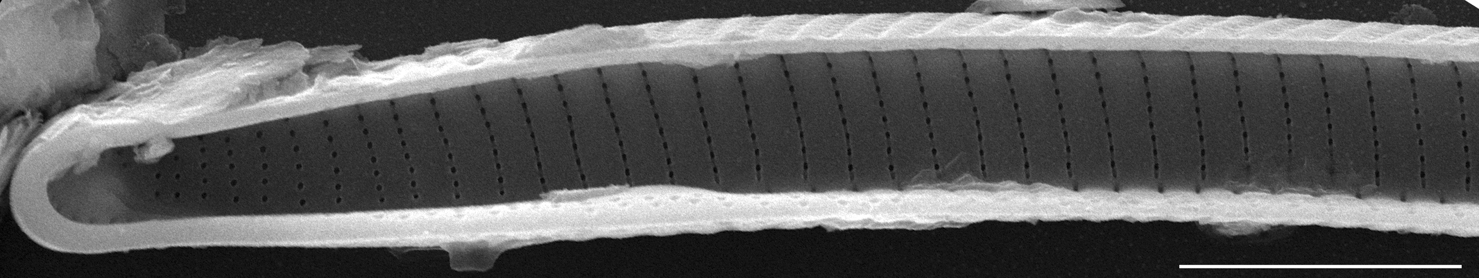 Eunotia obliquestriata SEM2