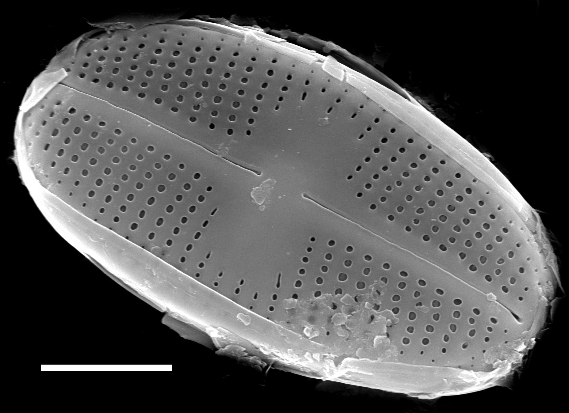 Psammothidium scoticum SEM2