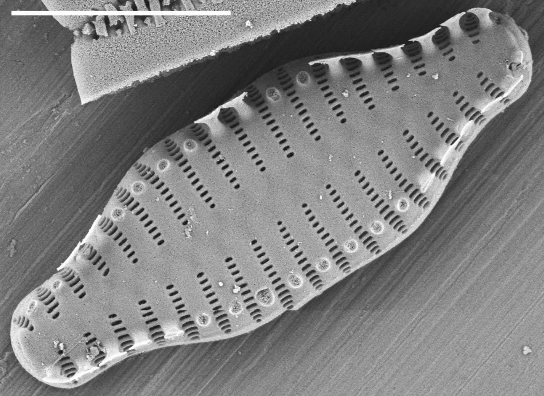 Staurosira construens var binodis SEM4