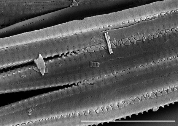 Fragilaria crotonensis SEM1