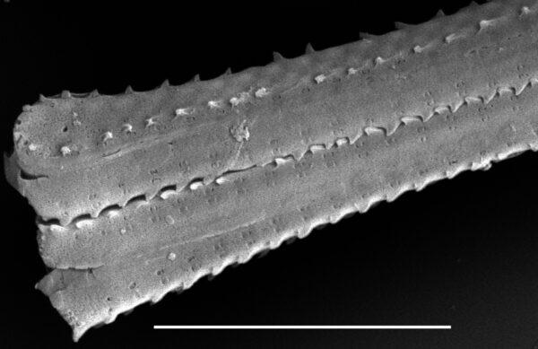 Fragilaria crotonensis SEM2