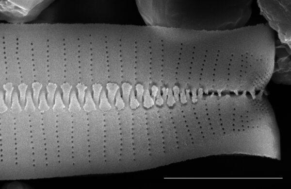 Fragilariforma virescens SEM1