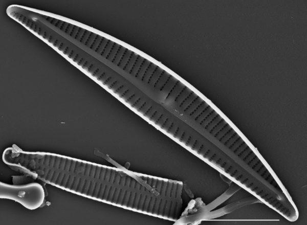 Encyonema pergracile SEM2