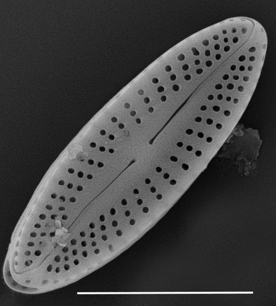 Achnanthes subhudsonis var kraeuselii SEM1