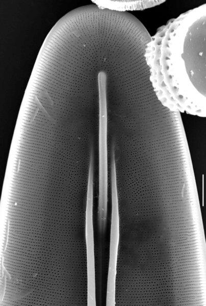 Frickea lewisiana SEM1
