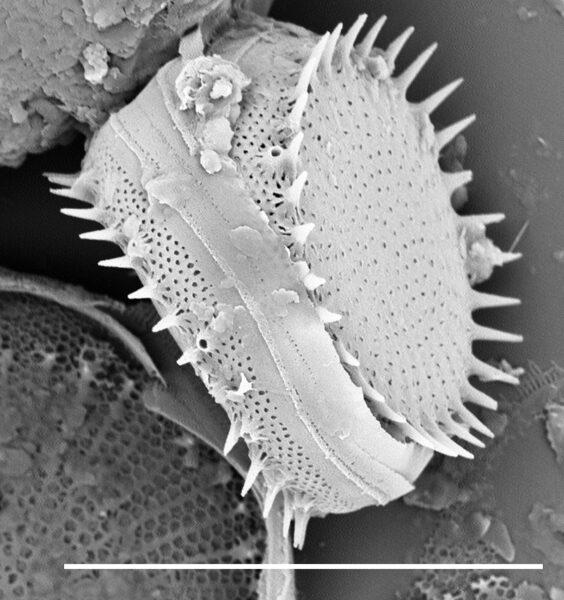 Stephanodiscus hantzschii SEM1