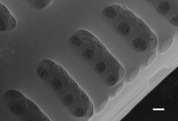 Achnanthidium kriegeri SEM1