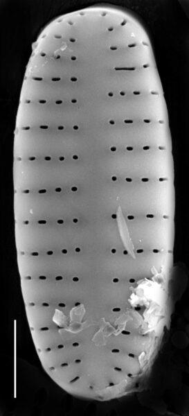 Achnanthidium atomus SEM1