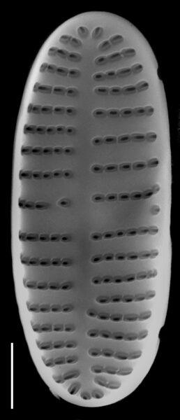 Achnanthidium atomus SEM2