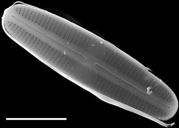 Rossithidium petersenii SEM2