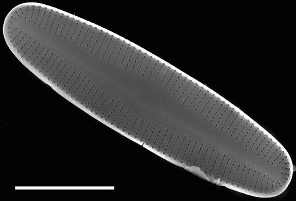 Rossithidium petersenii SEM4