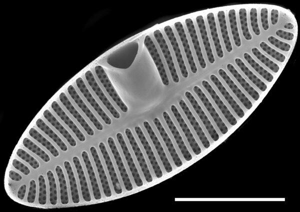 Planothidium oestrupii SEM1