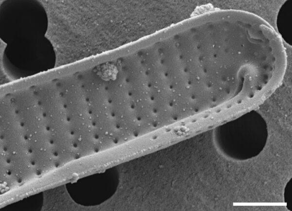 Eunotia mucophila SEM1