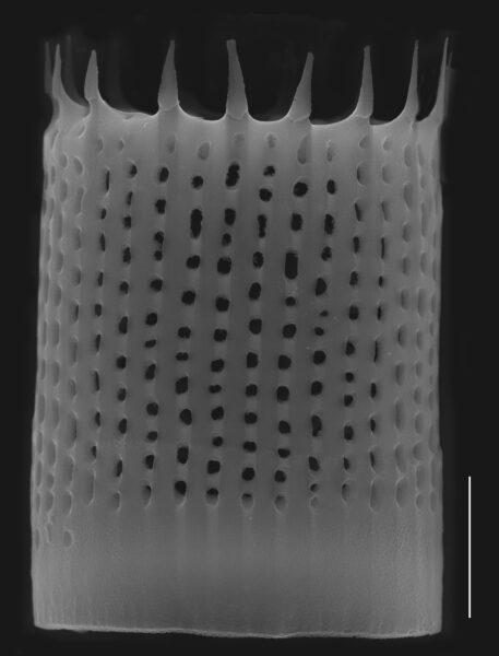 Aulacoseira nivaloides SEM1