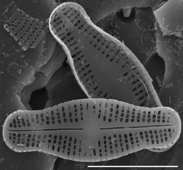 Achnanthidium rosenstockii SEM1