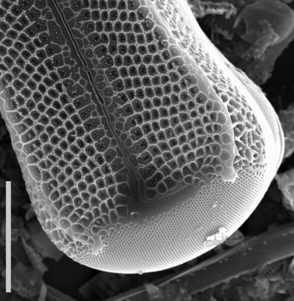 Didymosphenia geminata SEM1