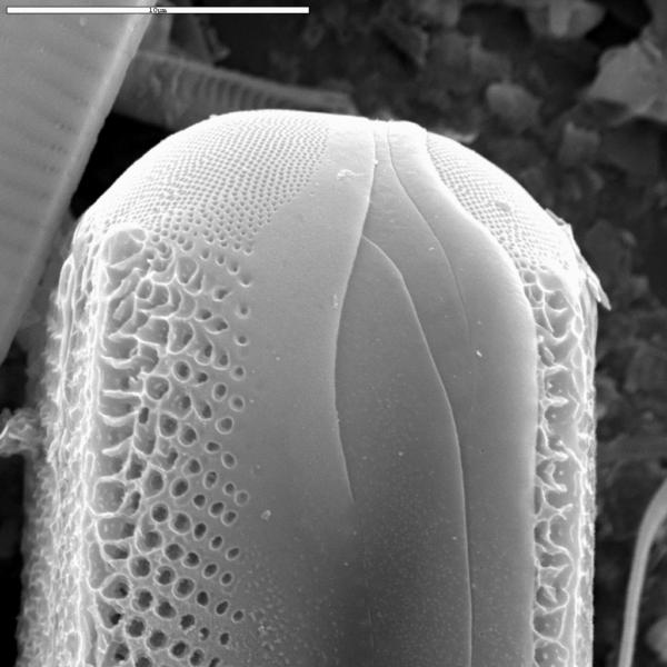Didymosphenia geminata SEM3