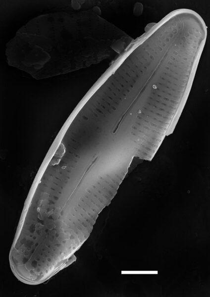 Nupela poconoensis SEM1