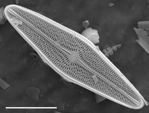 Brachysira brebissonii SEM1