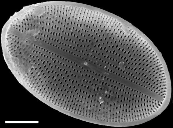 Cocconeis placentula SEM2