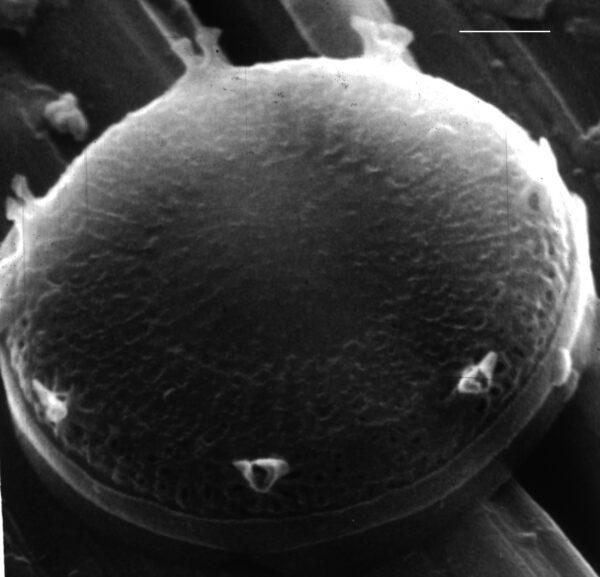 Discostella pseudostelligera SEM2