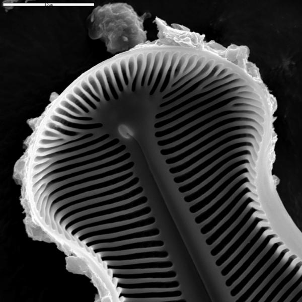 Didymosphenia geminata SEM4
