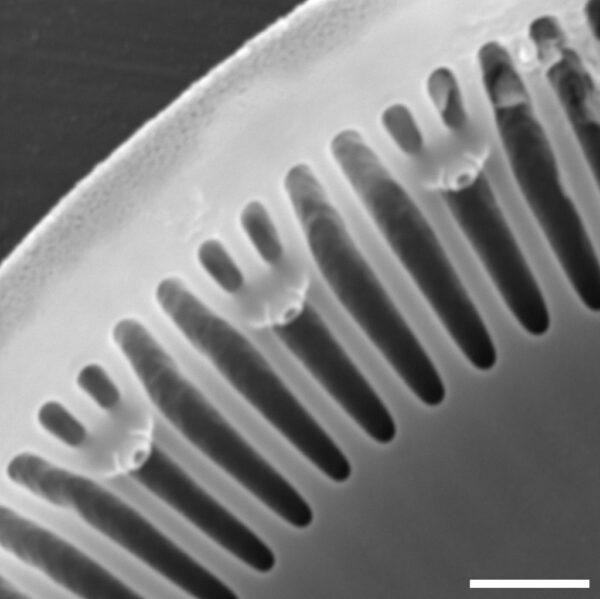 Discostella asterocostata SEM1