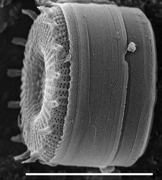Discostella asterocostata SEM2
