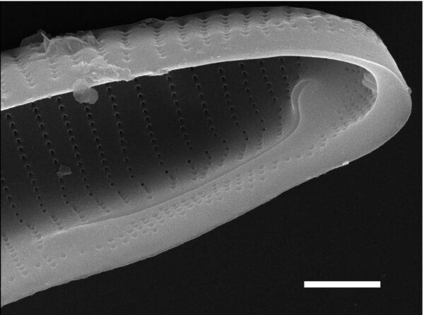 Eunotia macroglossa SEM5