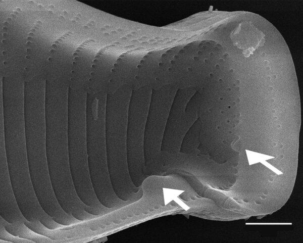 Eunotia montuosa SEM1