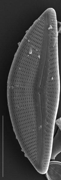 Encyonema yellowstonianum SEM1
