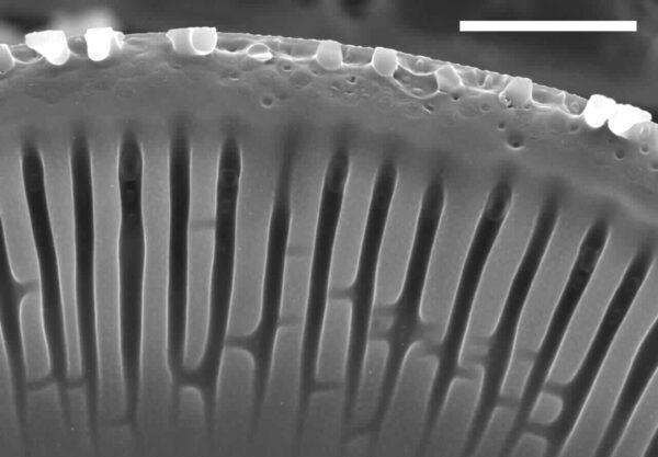 Encyonema yellowstonianum SEM5