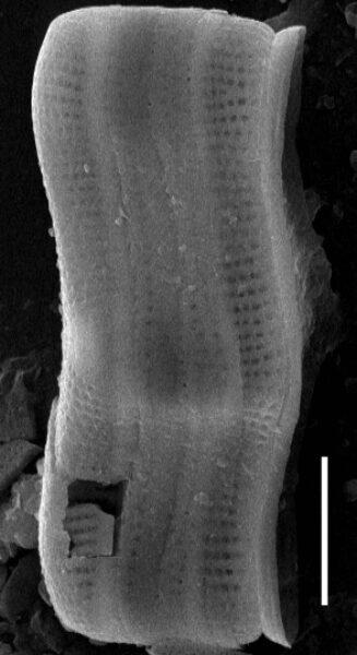 Achnanthes inflata SEM1