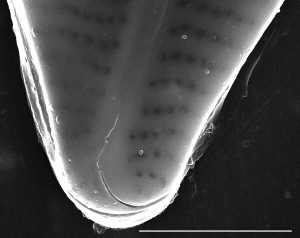 Encyonema hamsherae SEM5