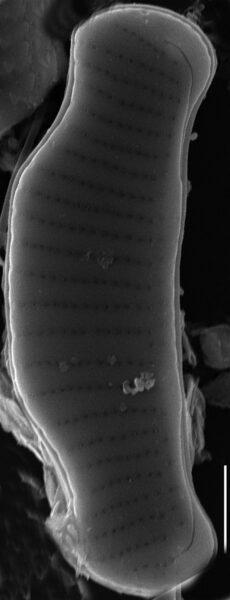 Eunotia cataractarum SEM2
