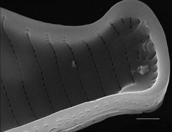 Eunotia subherkiniensis SEM2